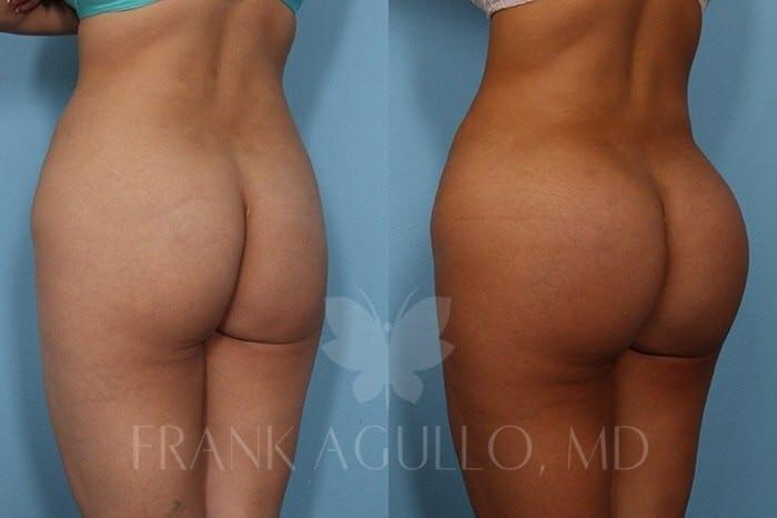 Butt implants pics — img 1