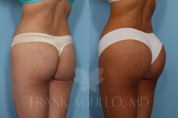 Butt Implants Before and After 15
