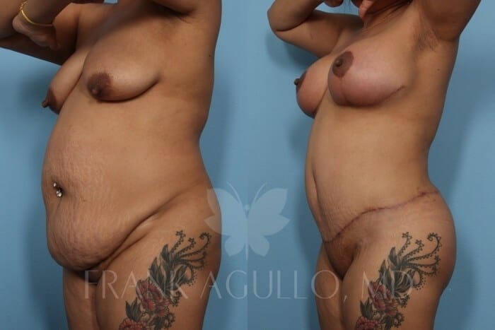 Breast Lift Before and After 19