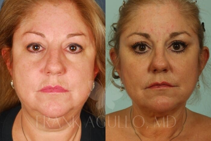 Face Lift Before and After 3