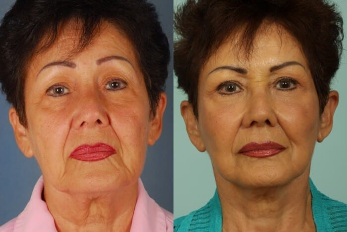 Face Lift Before and After 5