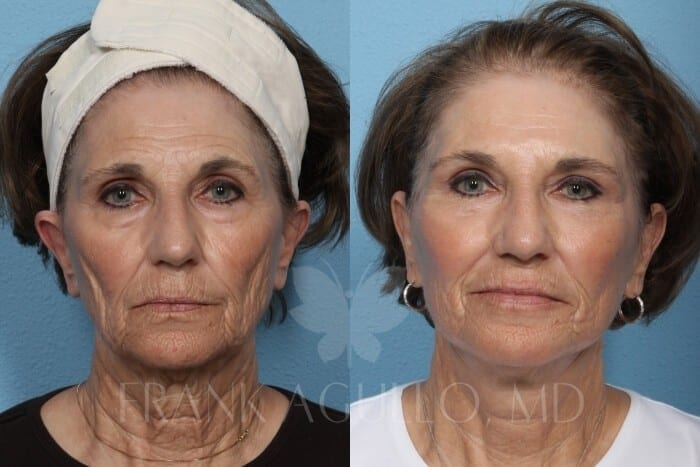 Face Lift Before and After 6