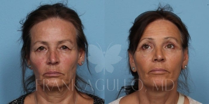 Face Lift Before and After 7