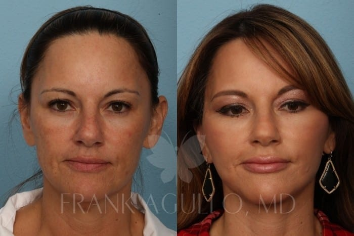 Face Lift Before and After 8