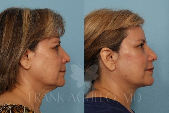 Face Lift Before and After 9