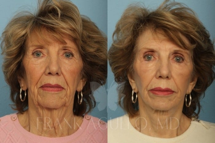 Face Lift Before and After 10