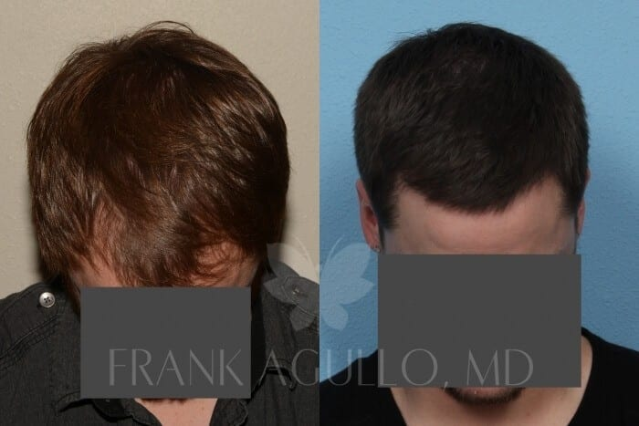 Hair Transplant Before and After 4