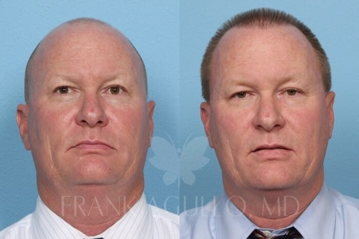 Hair Transplant Before and After 11