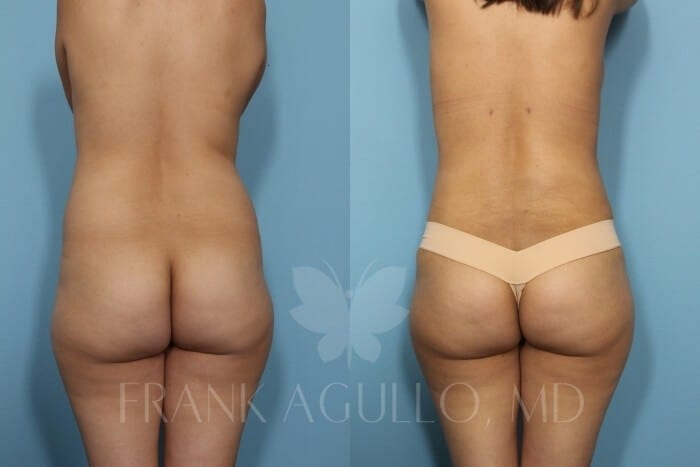 Liposuction Before and After 11