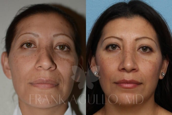 Rhinoplasty Before and After 15