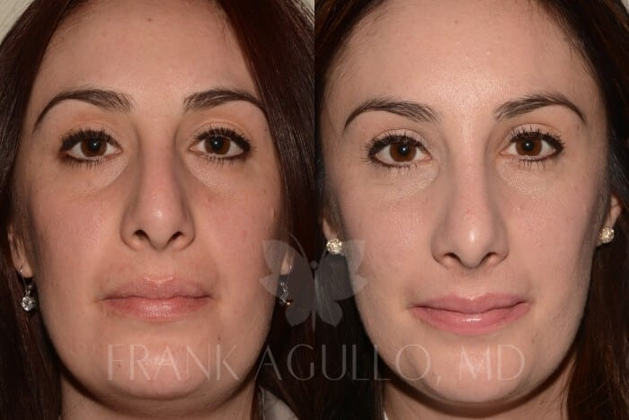 Rhinoplasty Before and After 2