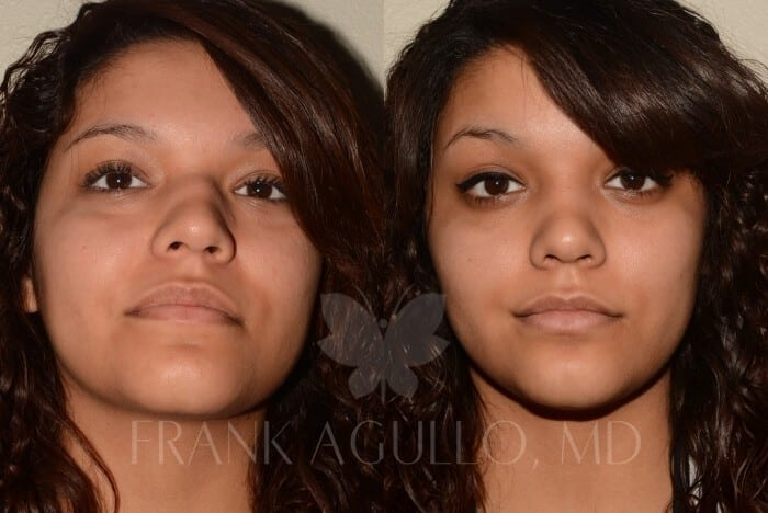 Rhinoplasty Before and After 5
