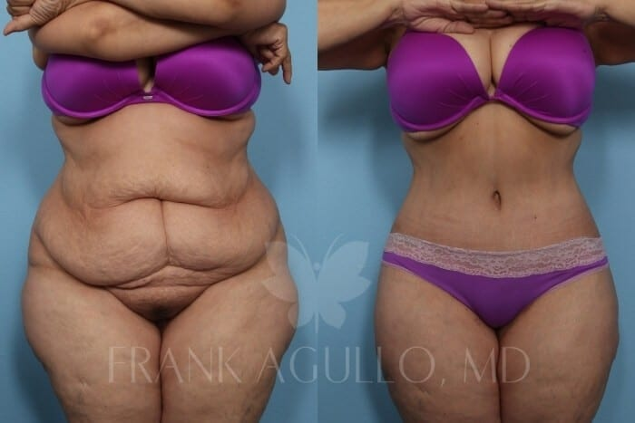 Tummy Tuck Before and After 1