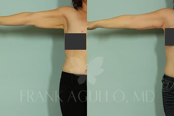 Arm Lift Before and After 4