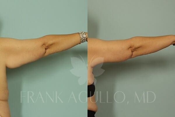 Arm Lift Before and After 6
