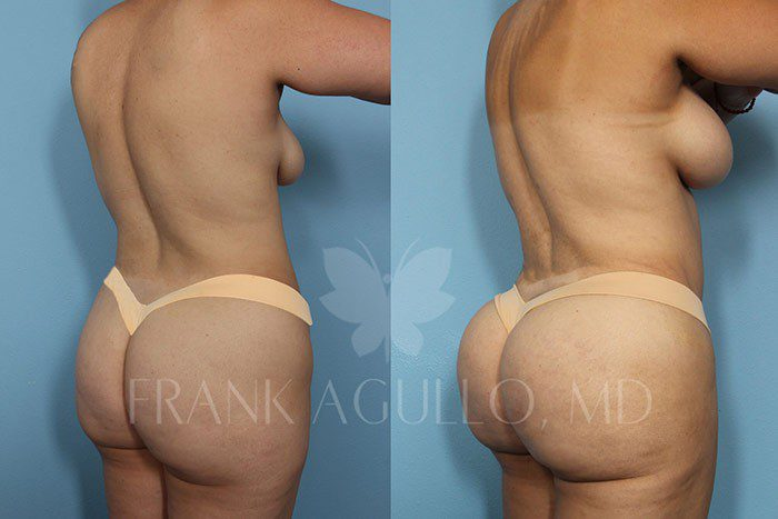 Brazilian Butt Lift Before and After 15