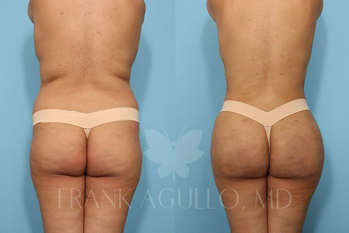 Brazilian Butt Lift Before and After 17