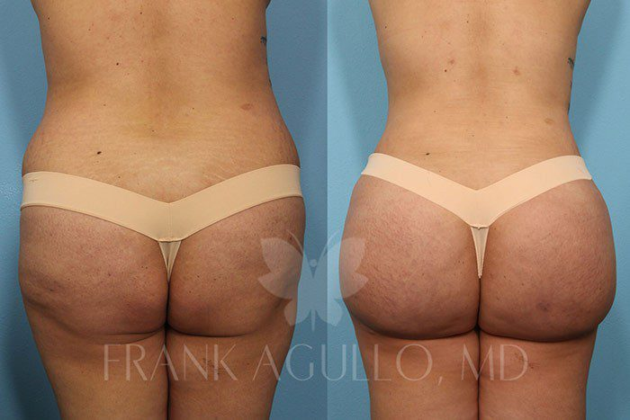 Brazilian Butt Lift Before and After 18