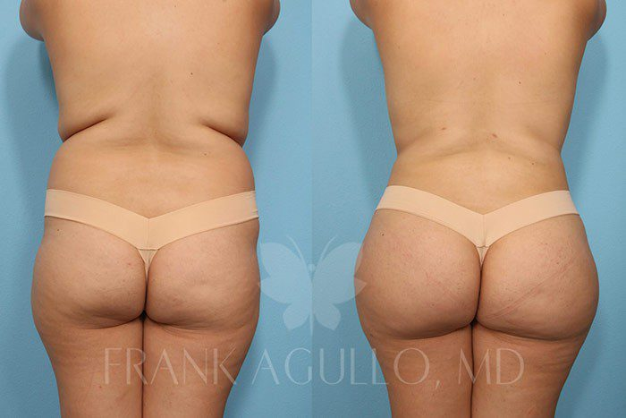 Brazilian Butt Lift Before and After 20