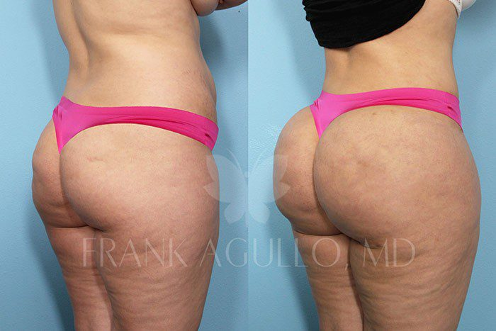 Brazilian Butt Lift Before and After 13