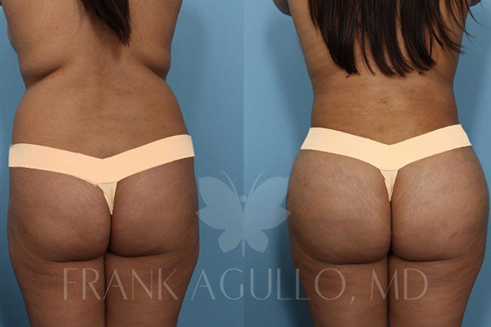 Brazilian Butt Lift Before and After 14