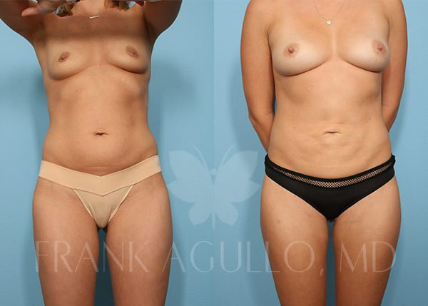 Breast Augmentation with Fat Injection Before and After 1