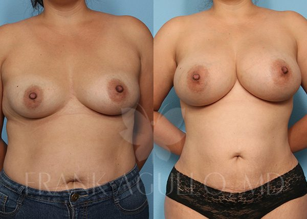Breast Augmentation with Fat Injection Before and After 2