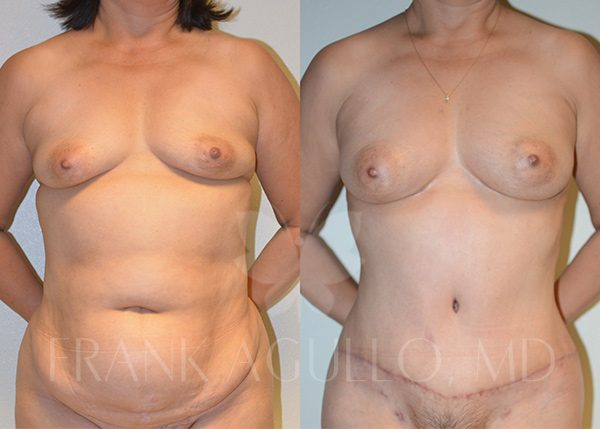 Breast Augmentation with Fat Injection Before and After 3
