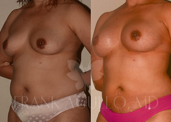 Breast Augmentation with Fat Injection Before and After 4