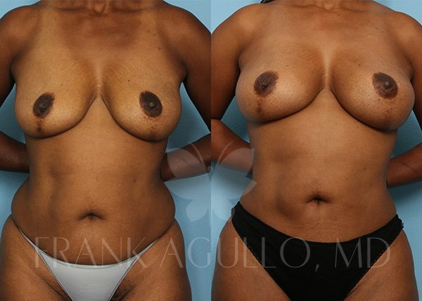 Breast Augmentation with Fat Injection Before and After 5