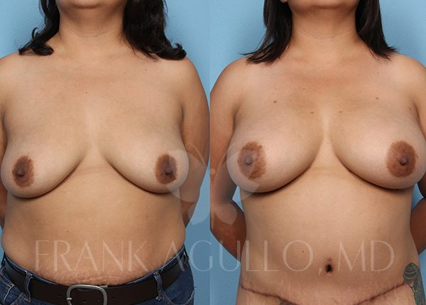 Breast Augmentation with Fat Injection Before and After 6