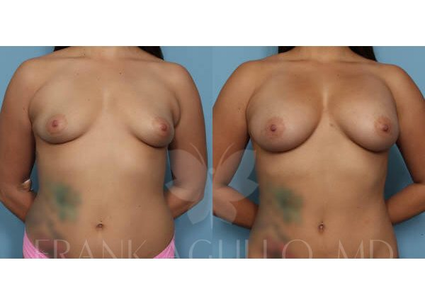 Breast Augmentation with Fat Injection Before and After 8
