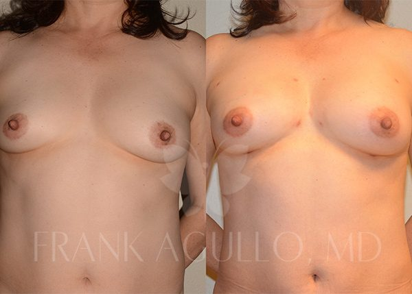 Breast Augmentation with Fat Injection Before and After 7