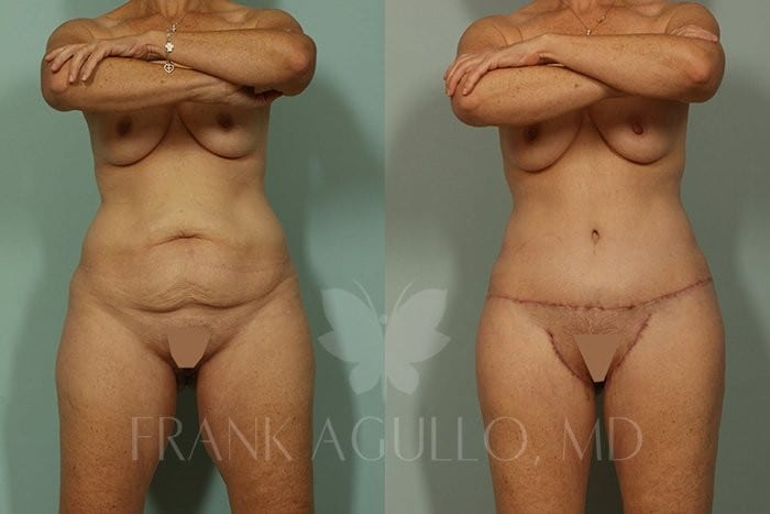 Body Contouring Before and After 3