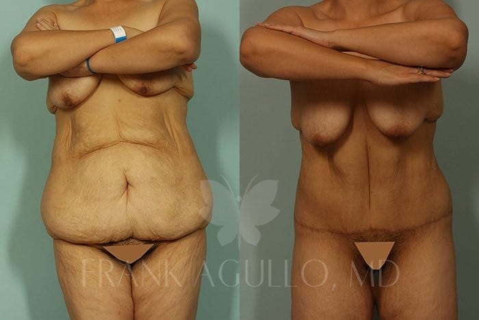 Body Contouring Before and After 4