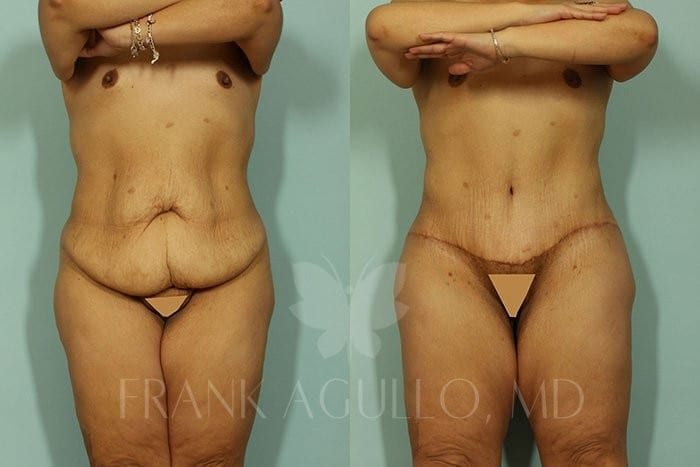 Body Contouring Before and After 5