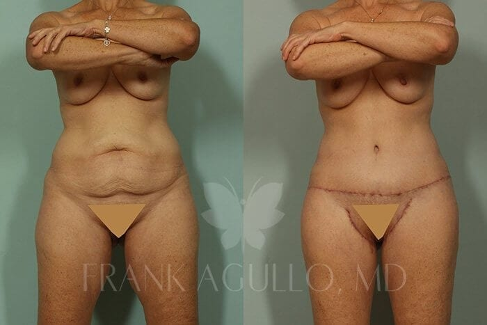 Body Lift Before and After 1
