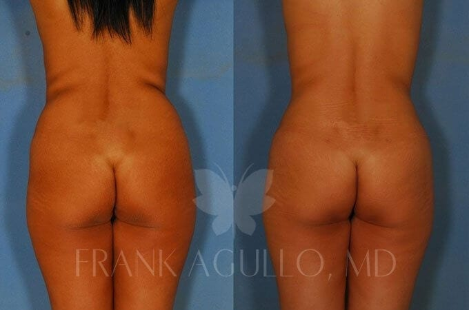 Brazilian Butt Lift Before and After 7