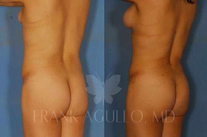Brazilian Butt Lift Before and After 8