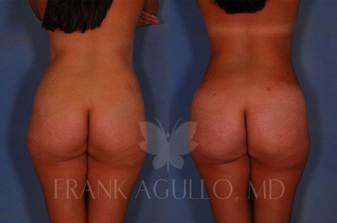 Brazilian Butt Lift Before and After 10