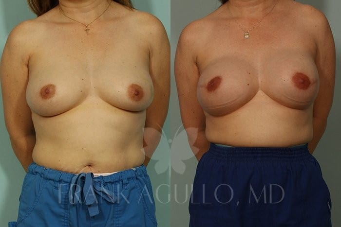 Breast Reconstruction Before and After 1