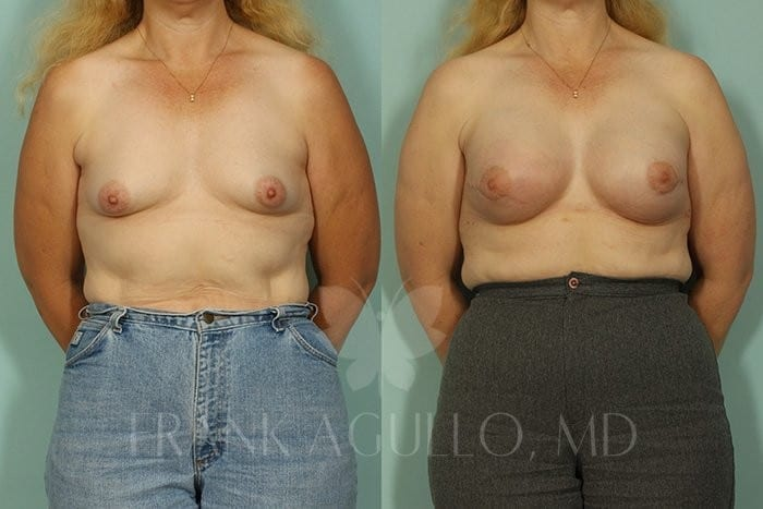 Breast Reconstruction Before and After 2
