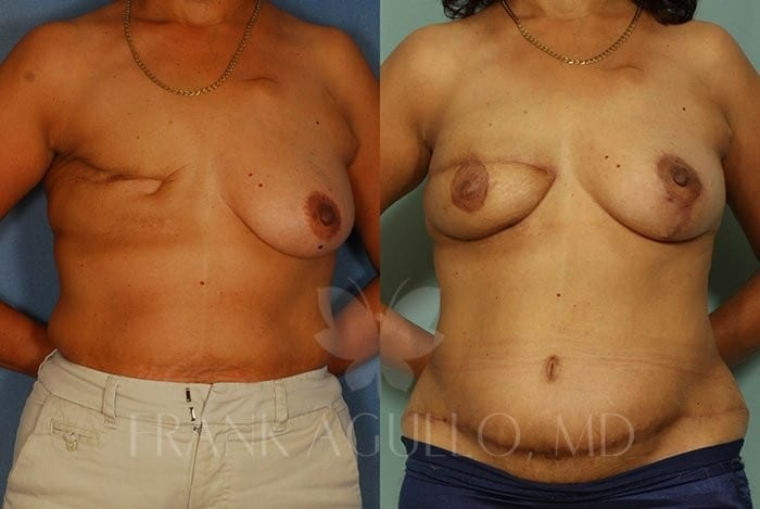 Breast Reconstruction Before and After 4