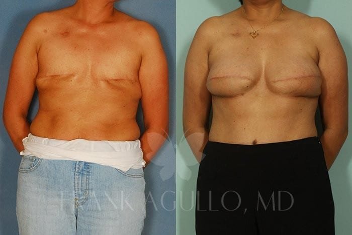 Breast Reconstruction Before and After 5