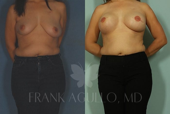 Breast Reconstruction Before and After 6