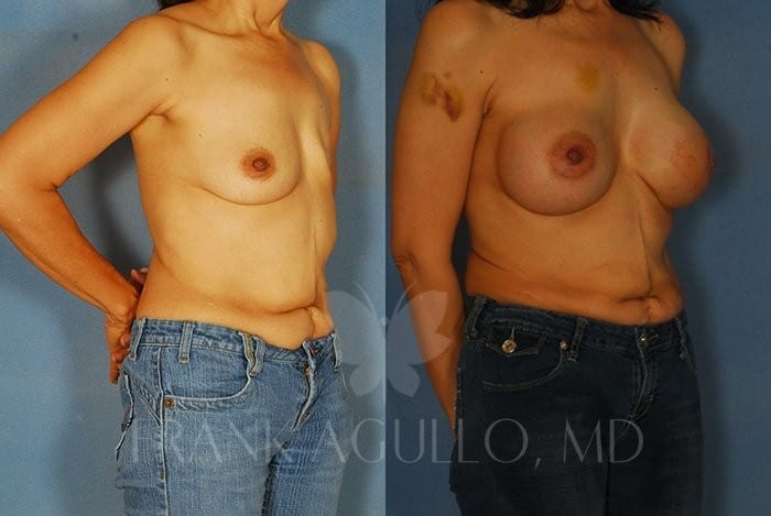 Breast Reconstruction Before and After 7