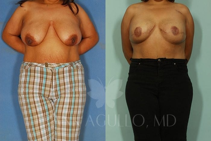Breast Reconstruction Before and After 8