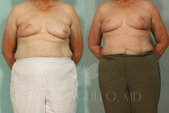 Breast Reconstruction Before and After 9