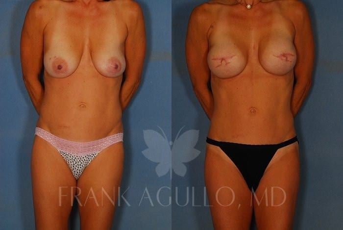 Breast Reconstruction Before and After 10