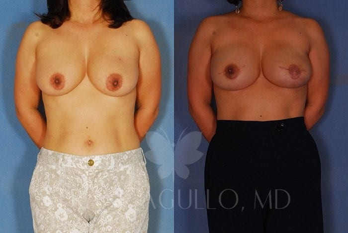 Breast Reconstruction Before and After 11